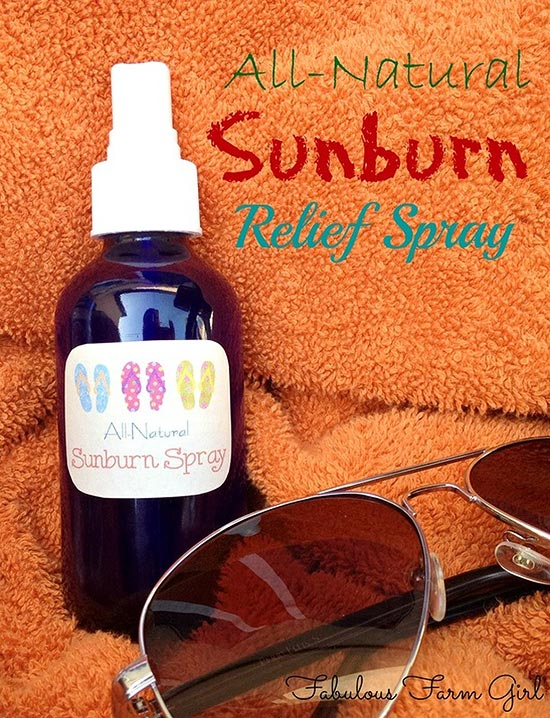 natural-sunburn-relief-spray